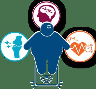 肥満のイメージ