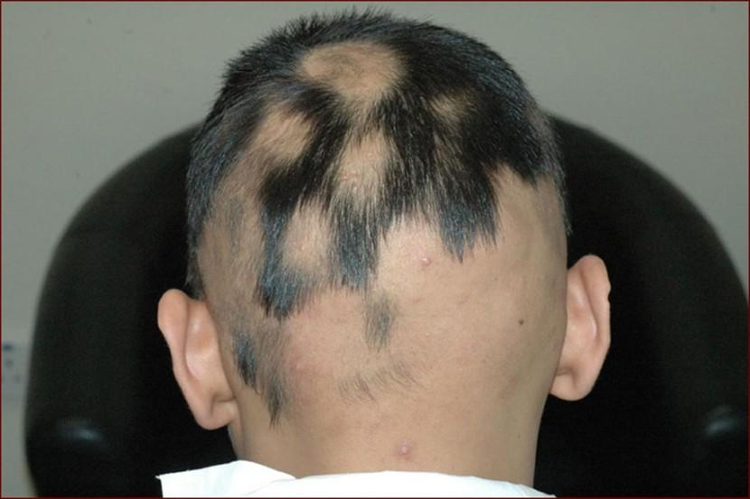 広範囲の円形脱毛症