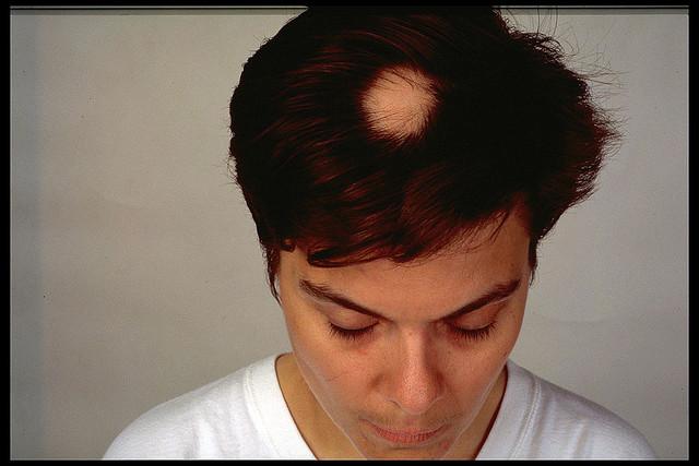 円形脱毛症例